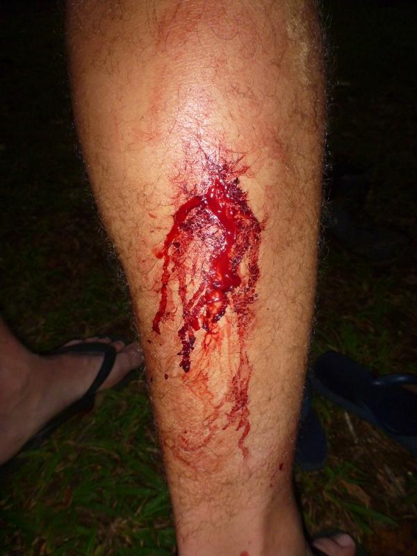 Joe's leech wounds
